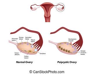 卵巢, polycystic, eps8, 正常