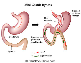 微型, 胃, 外科, 旁路, eps8