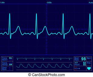 心監視器, 屏幕