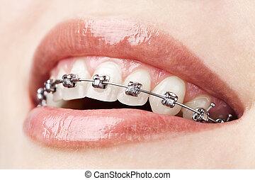 括號, 牙齒