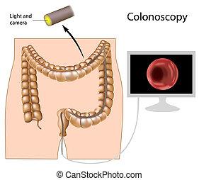 程序, eps8, colonoscopy