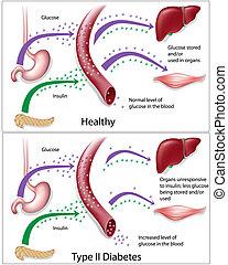 糖尿病, 2, 類型