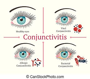 illustration., 健康, 眼睛, disease., 眼科學