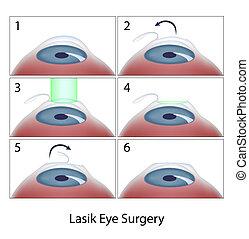 lasik 手術, 程序, 眼睛, eps10