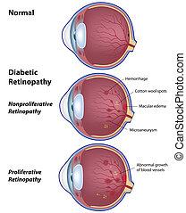 retinopathy, 糖尿病患者, eps8